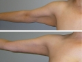Armlift Photos