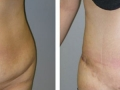 Tummy Tuck Before and After