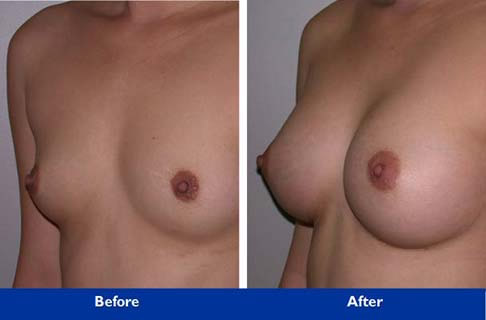 breast surgery in Beverly hills